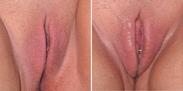 vagina stootkussen